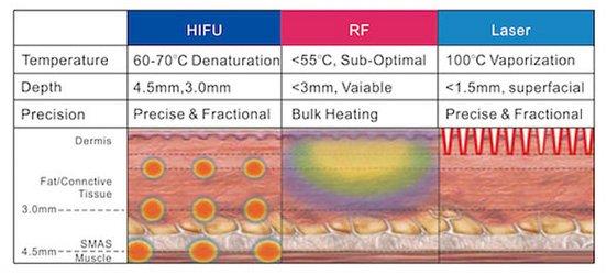 Face Lift Clinic Brisbane & Gold Coast | Hifu Treatment
