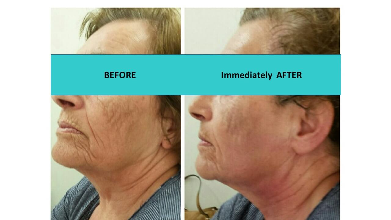 Incredible skin texture transformation immediately after the HIFU face and neck treatment. Deep lines softening.
