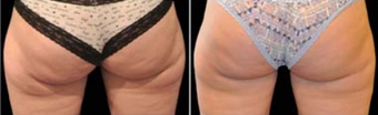 Fat Freezing & Fat Cavitation