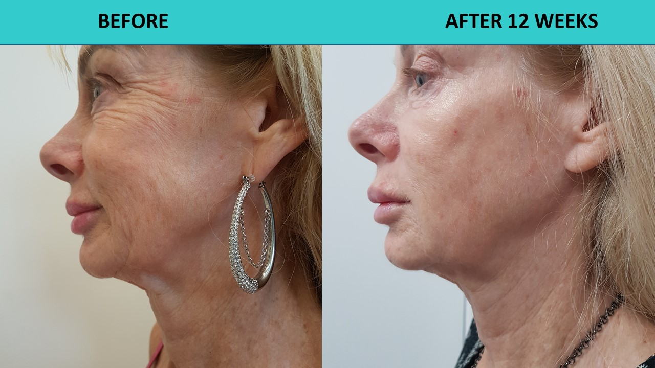 HIFU non surgical face lift in action - great results after three months.