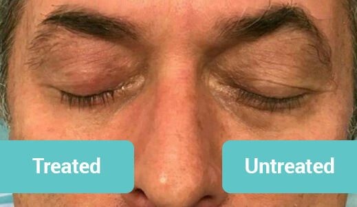 Introducing Mini HIFU  You wont find this anywhere else - EXCLUSIVE to SABA Medispa. We are the only clinic with Mini HIFU technology on the Gold Coast and Brisbane areas. Look at the photo results immediately after one treatment - one eye has been treated and the other one hasn't. Look at the eye lids and the eye bags!!! Quite a noticeable change!!! • Tightens the skin • Smoothes marionette lines/nasolabial folds • Lifts the top eyelid and smoothes lines underneath the eye • Smoothes crows feet and frown lines • Around the mouth (smoker's lines)  We are the HIFU SPECIALISTS Mini HIFU perfectly compliments clients who have already had a HIFU face and neck uplift. Special price applies to our existing HIFU customers - $500 for Mini HIFU around the eyes and around the mouth, or $250 for one area only (eyes or mouth).  New customers price: • $350 around the eyes • $400 around the mouth • $700 for eyes and mouth in one session. Treatment can be repeated again if you want to improve your results.