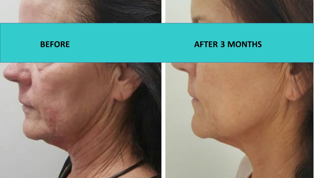 HIFU non surgical face and neck lift - when picture is worth a thousand words and deep face and neck lines just go away. Simply incredible!