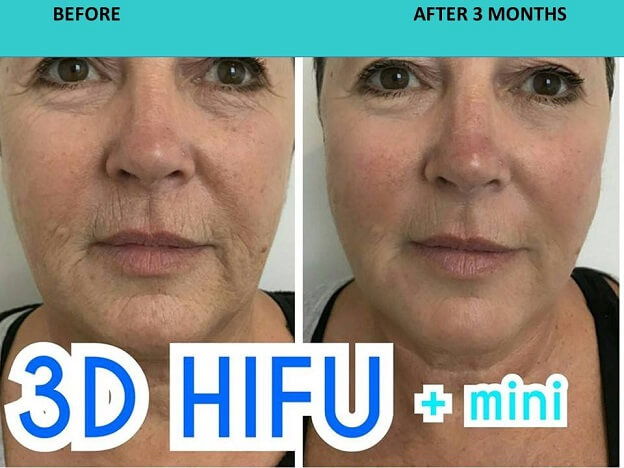 3D HIFU   HIFU Mini = HIFU Premium face and neck lift. Check out the fine lines around the eyes and the mouth of this customer.