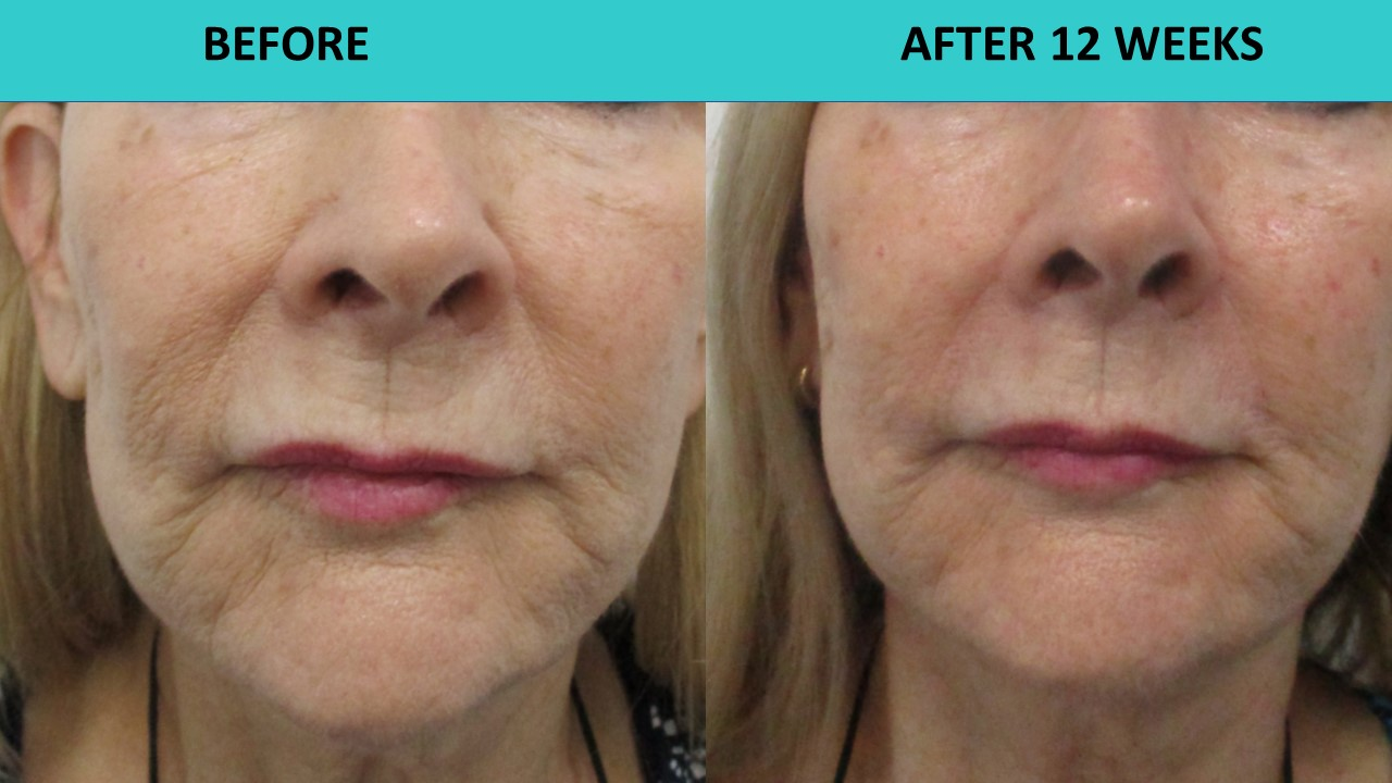 Her skin is so much smoother and wrinkles are going away three months after the HIFU non surgical face and neck lift.