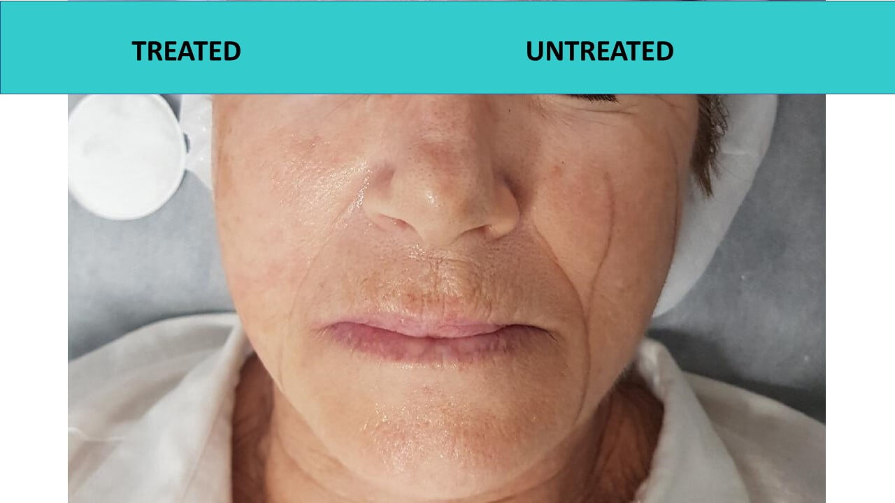 HIFU Glow Facial - we took this photo half way through the treatment. One side of the face is treated and the other one isn