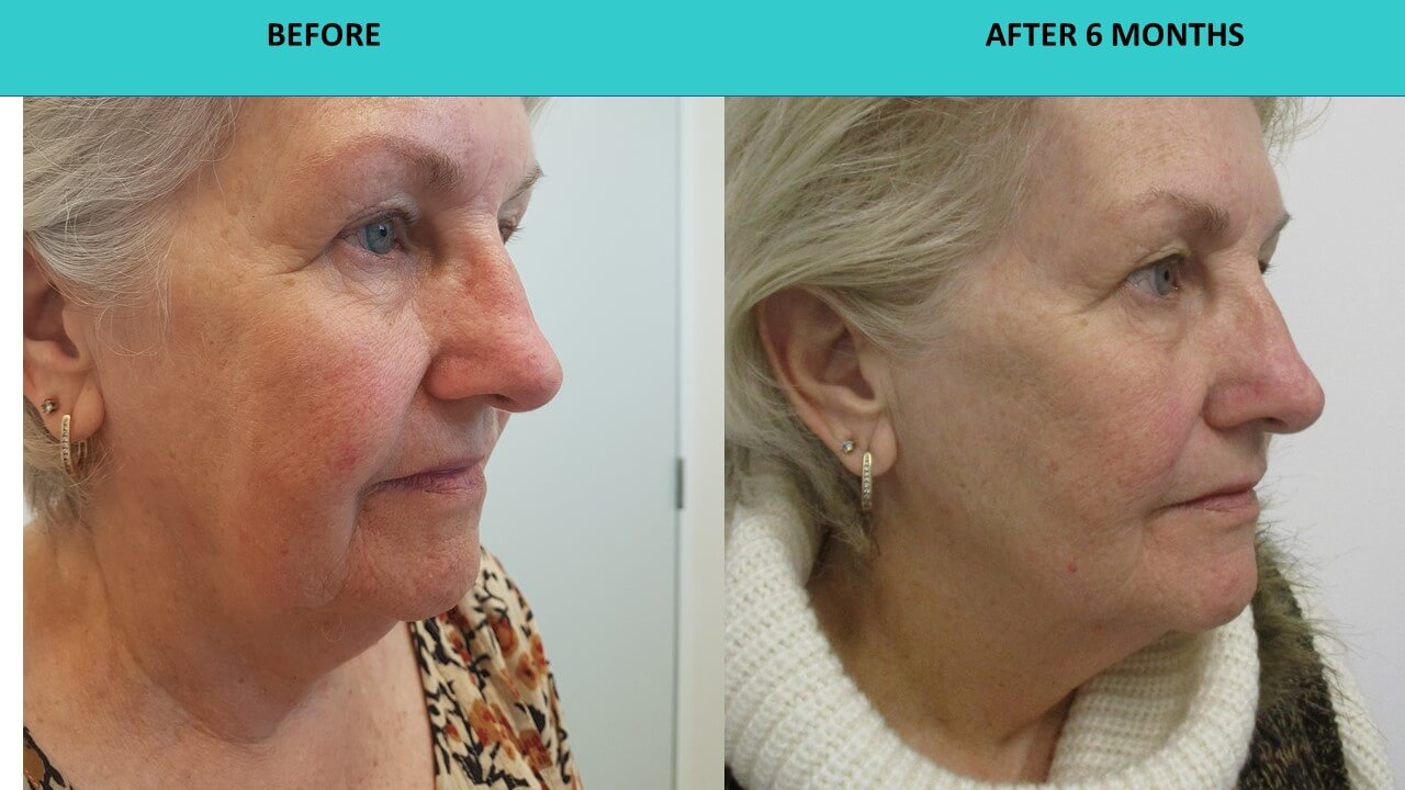 HIFU non sugical face and neck lift - reversing the clock and taking 10 years of this customers face six months after the treatment. Everything has been lifted and tightened!