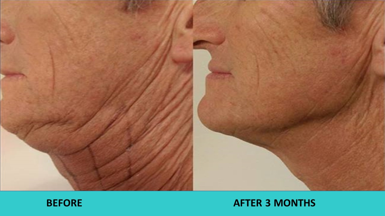 One of the best ever neck results three months after the HIFU non surgical face and neck lift.