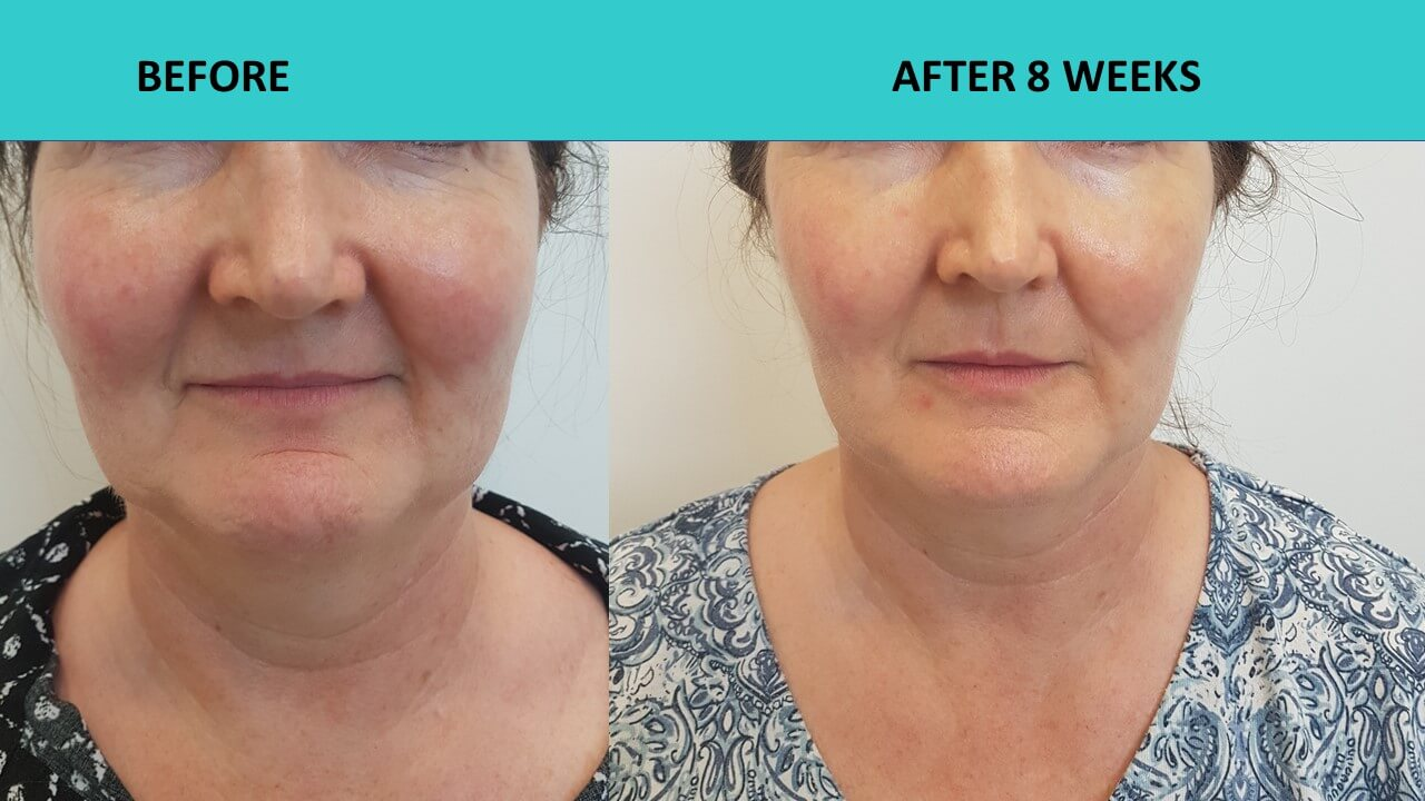HIFU non sugical face and neck lift - reversing the clock, sculpting the face and taking 5-10 years of this customers face!!