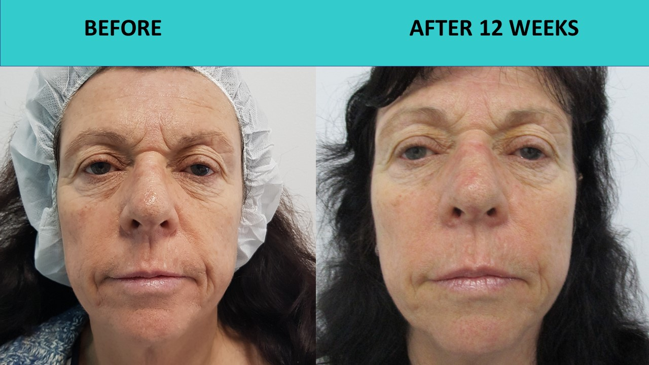 HIFU non sugical face and neck lift - reversing the clock and taking 5 years of this customers face.