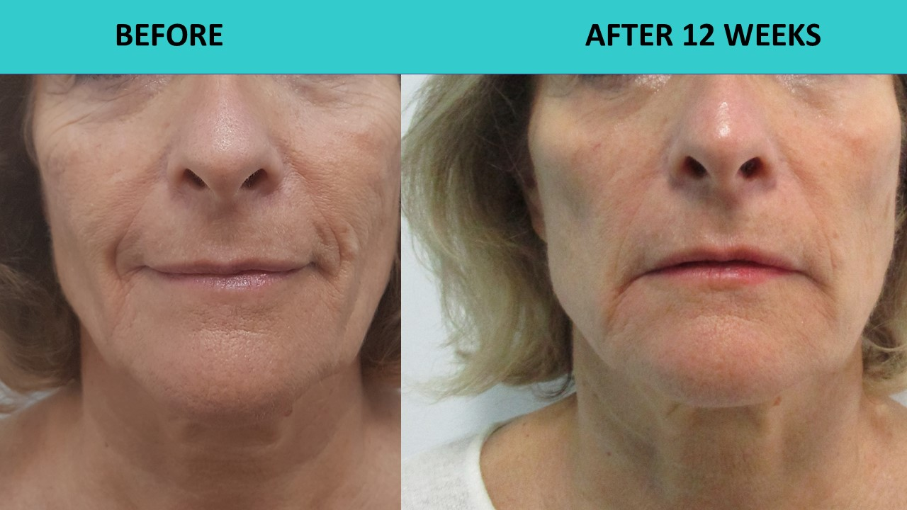 HIFU non surgical face and neck lift - when picture is worth a thousand words and deep face lines just go away. Simply incredible!