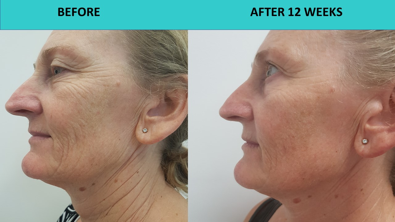HIFU non surgical face and neck lift - when picture is worth a thousand words and deep face and neck lines just go away.