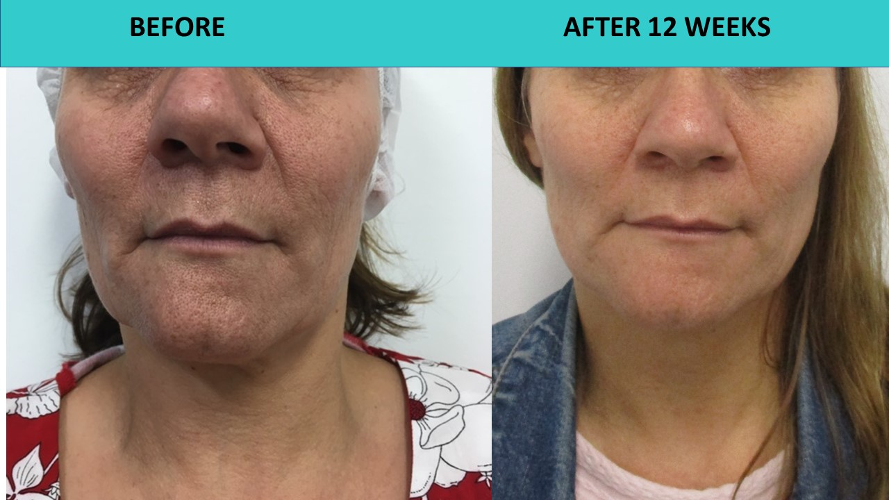 HIFU non surgical face lift - incredible skin texture transformation three months after the treatment..