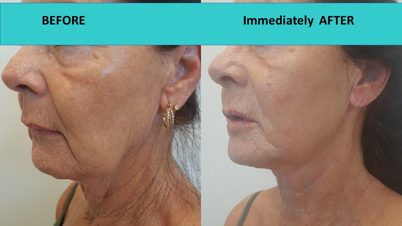 Spectacular neck and jaw transformation immediately after the HIFU face and neck treatment.