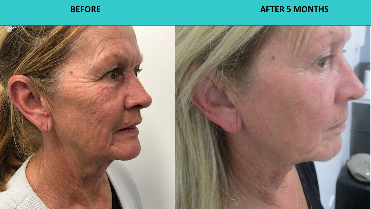 HIFU non surgical face and neck lift - when picture is worth a thousand words and deep face and neck lines just go away. Simply incredible results after five months!!