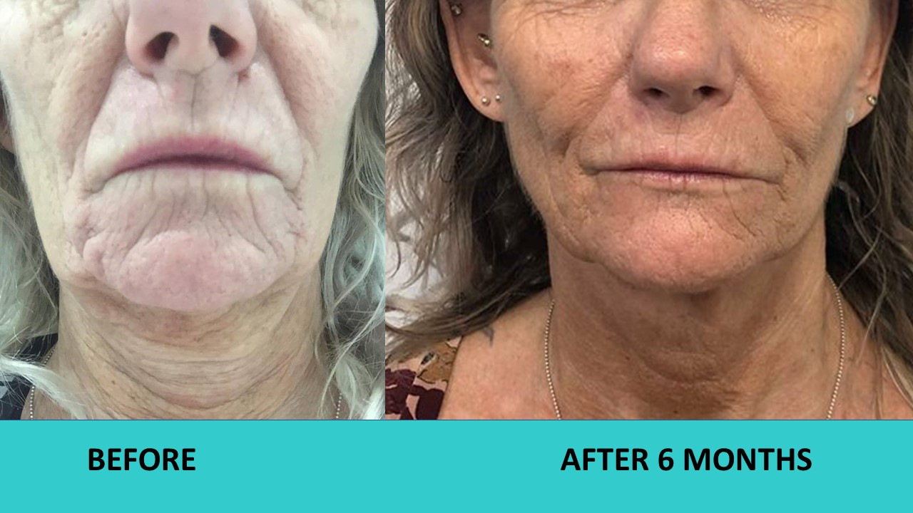 HIFU non sugical face and neck lift combined with plasma cosmetic treatments - no commentary needed to describe the results here for this customer!