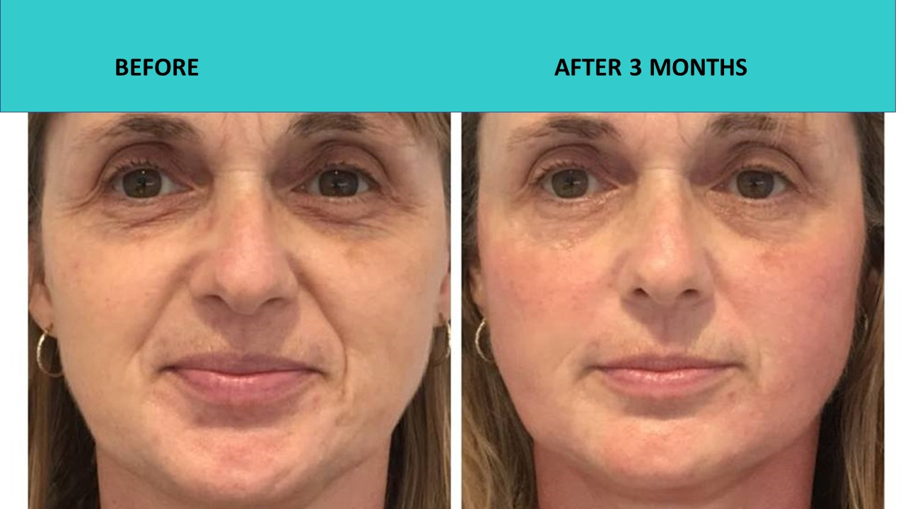 HIFU non surgical face lift at SABA Medispa. When picture is worth a thousand words and requires no commentary.