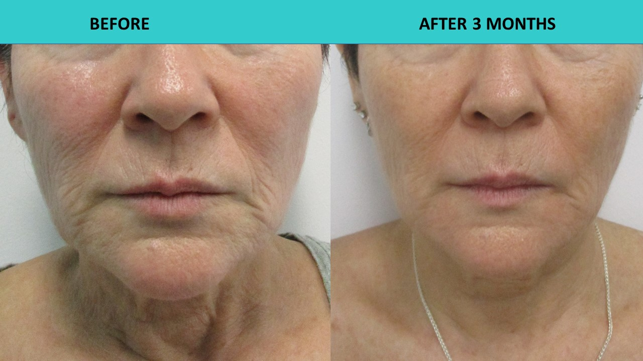 HIFU face and neck lift - wrinkles away!