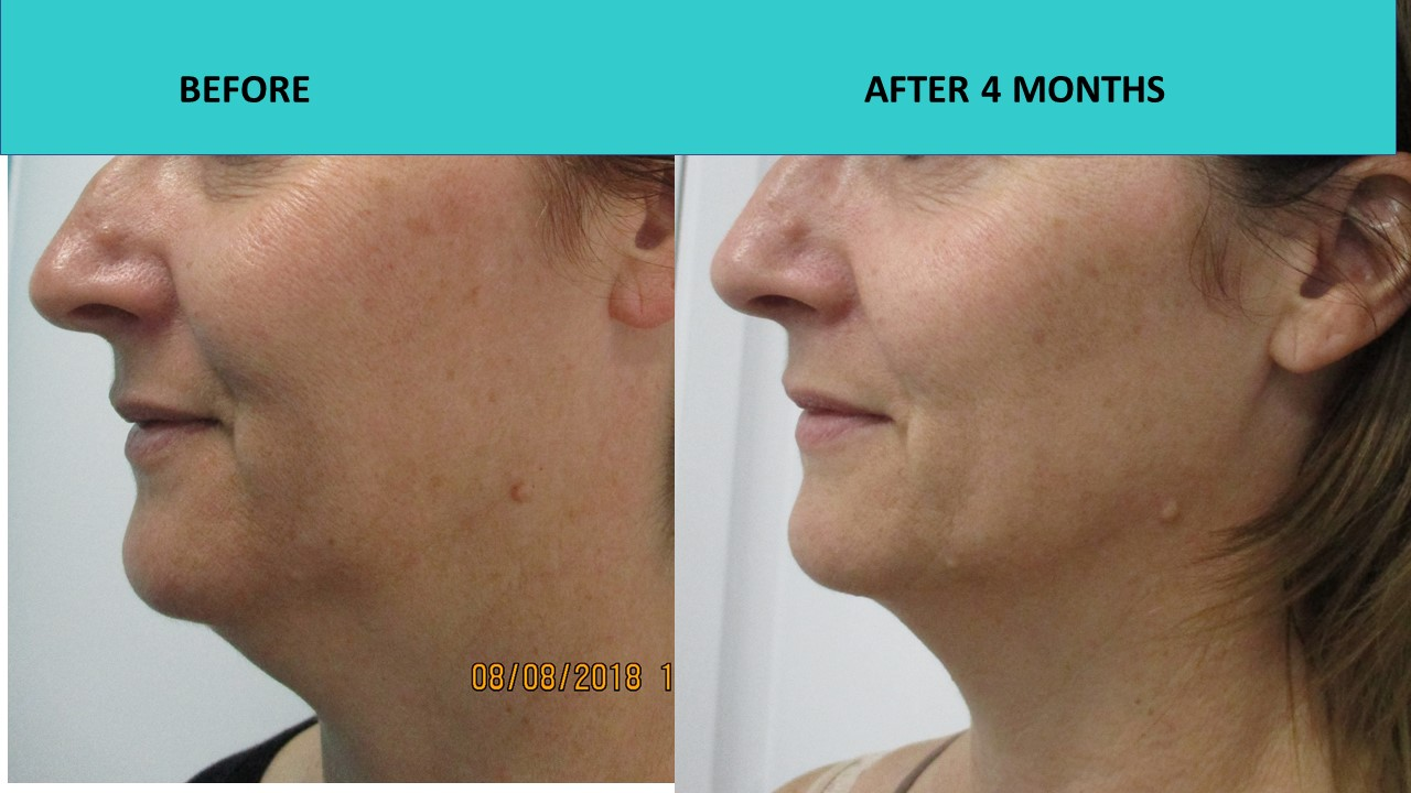 HIFU non surgical face lift at SABA Medispa - great results for jaw line definition for this client 3 months after the treatment!
