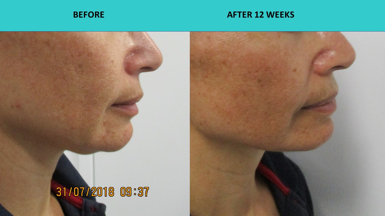 HIFU non sugical face and neck lift - perfect example of improved jaw line definition for a young woman!!