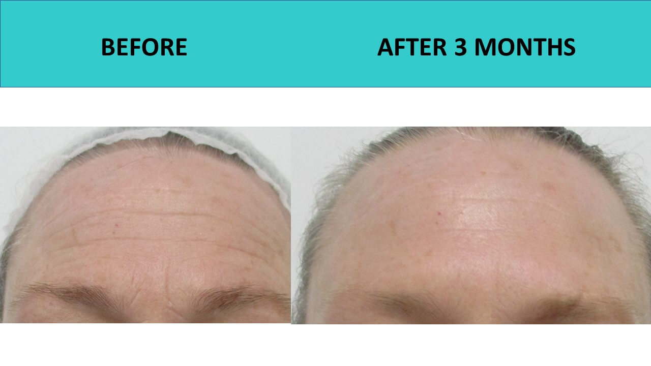 HIFU non surgical face lift at SABA Medispa. Forehead lines ironed out!