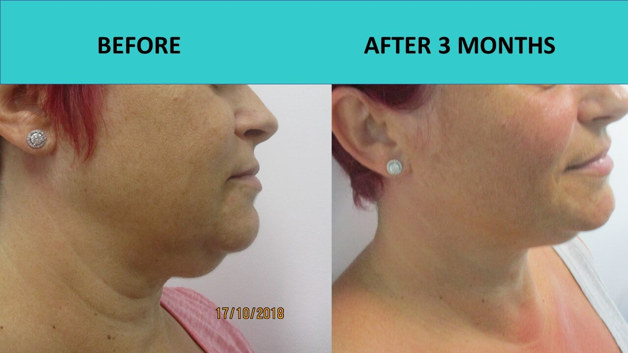 Great example of a double chin reduction at SABA Medispa.