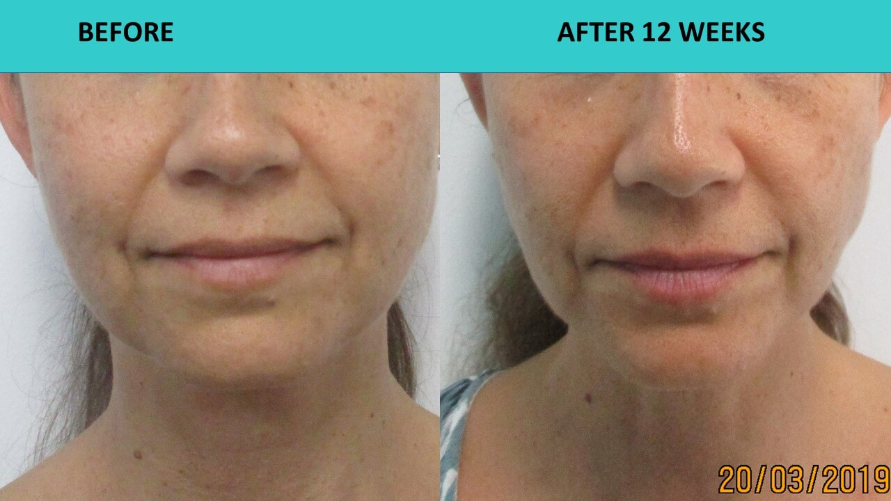 HIFU non sugical face and neck lift - perfect example of face sculpting for a young woman!!