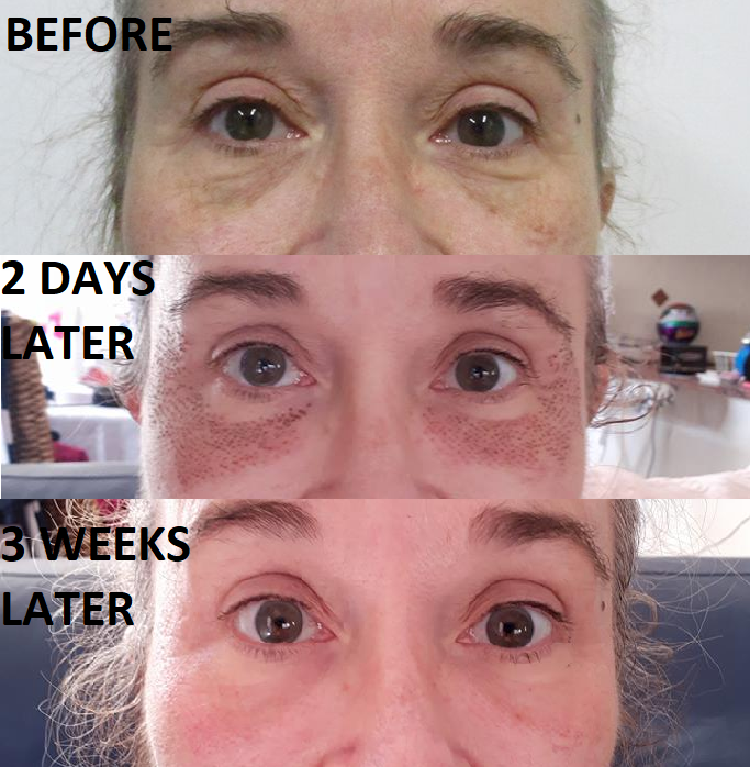 Plasma cosmetic results after one treatment - incredible eye bag and wrinkle removal.