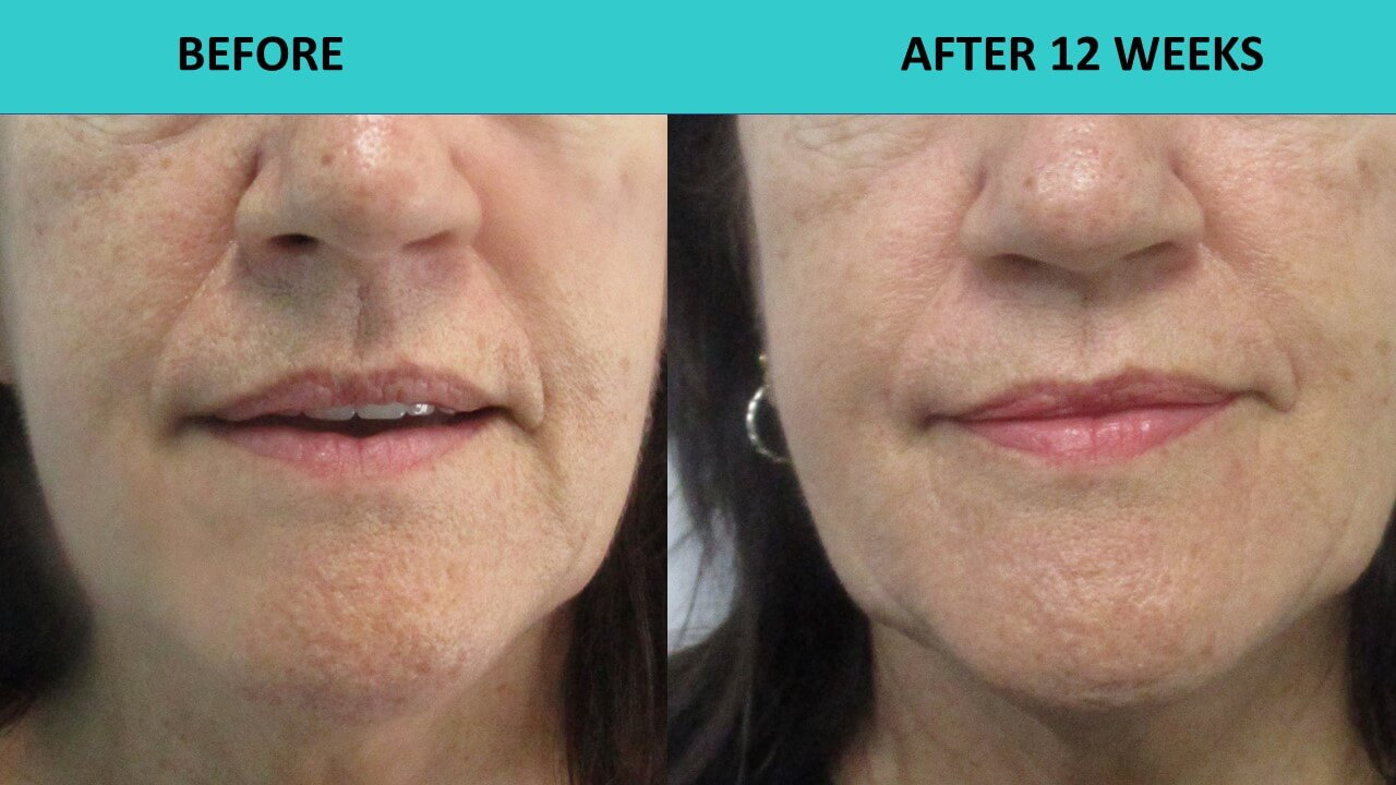 Here is an example of a very significant softening of the nasolabial folds 3 months after the HIFU treatment!