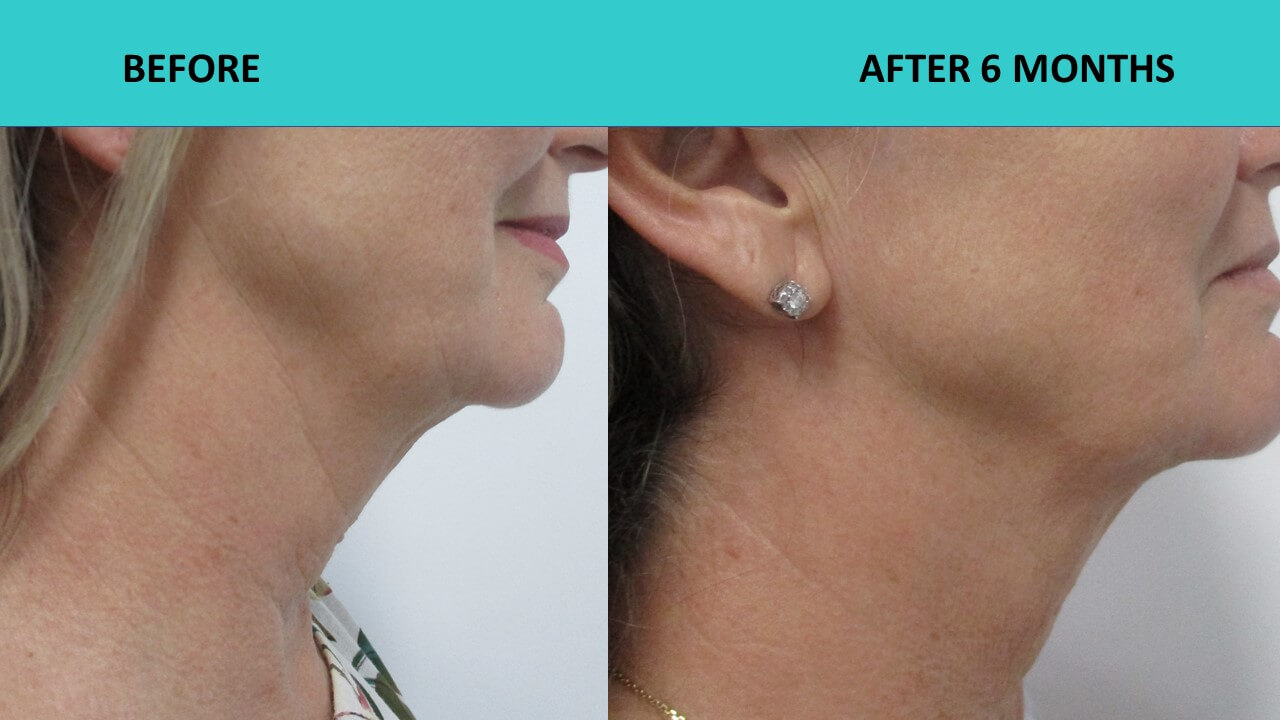 Great example of neck and jaw line improvements six months after the HIFU treatment.
