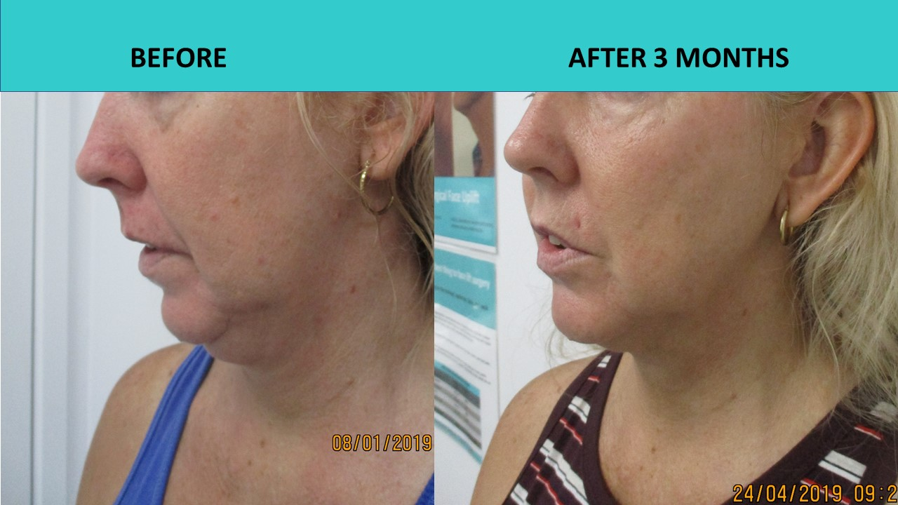 HIFU face and neck lift -  impressive chin / jaw line results!!! Skin texture has also improved in a significant way.