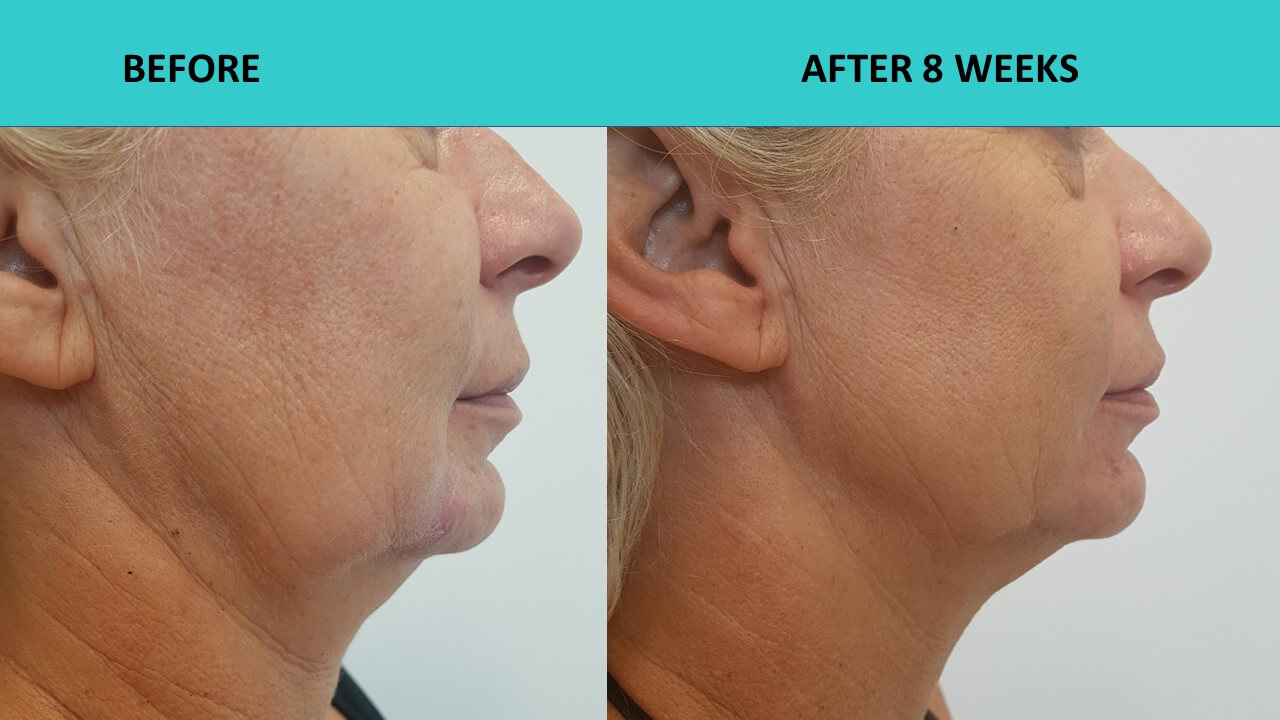 HIFU face and neck lift - impressive neck and jaw results only 8 weeks after the procedure.