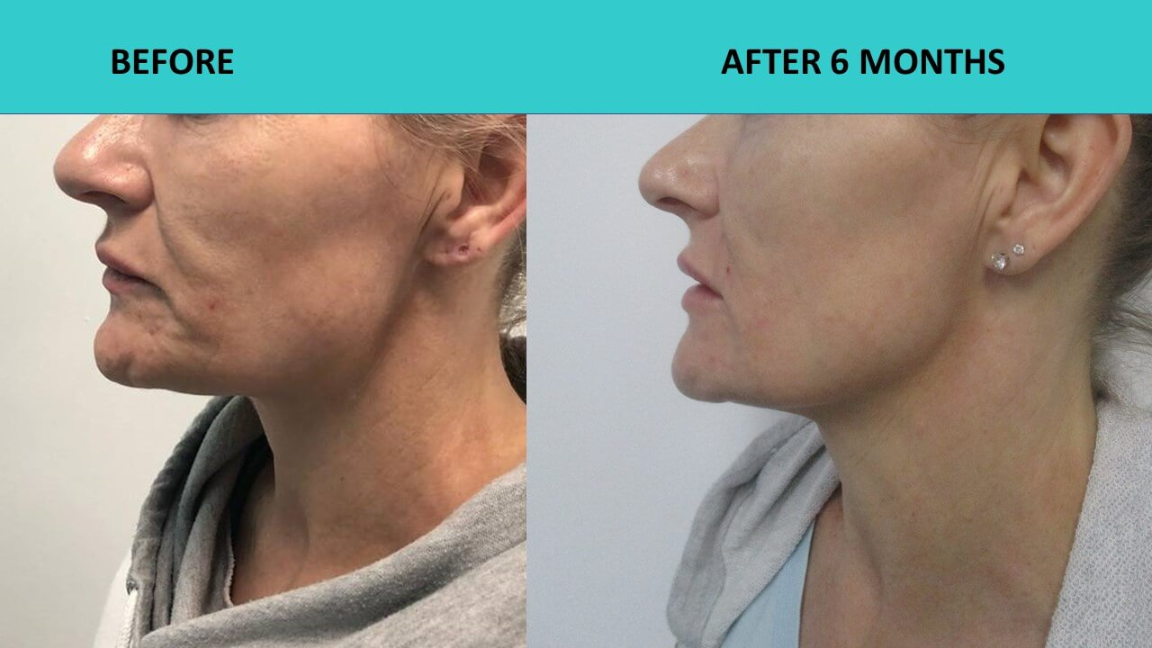 HIFU face and neck lift - Her skin is so much smoother and it shows that young women can also benefit from HIFU!