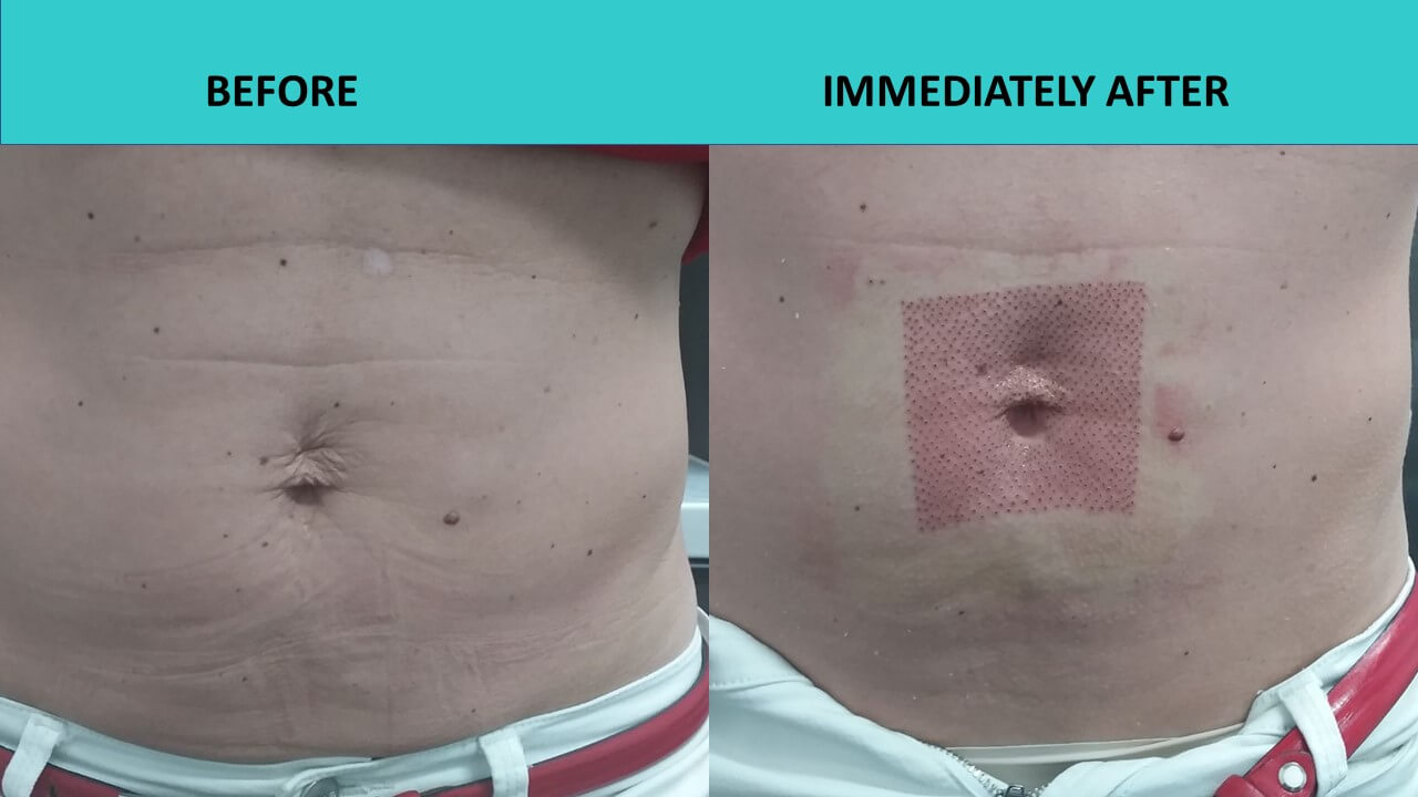 Incredible skin tightening results immediately after the plasma cosmetic procedure at SABA Medispa!