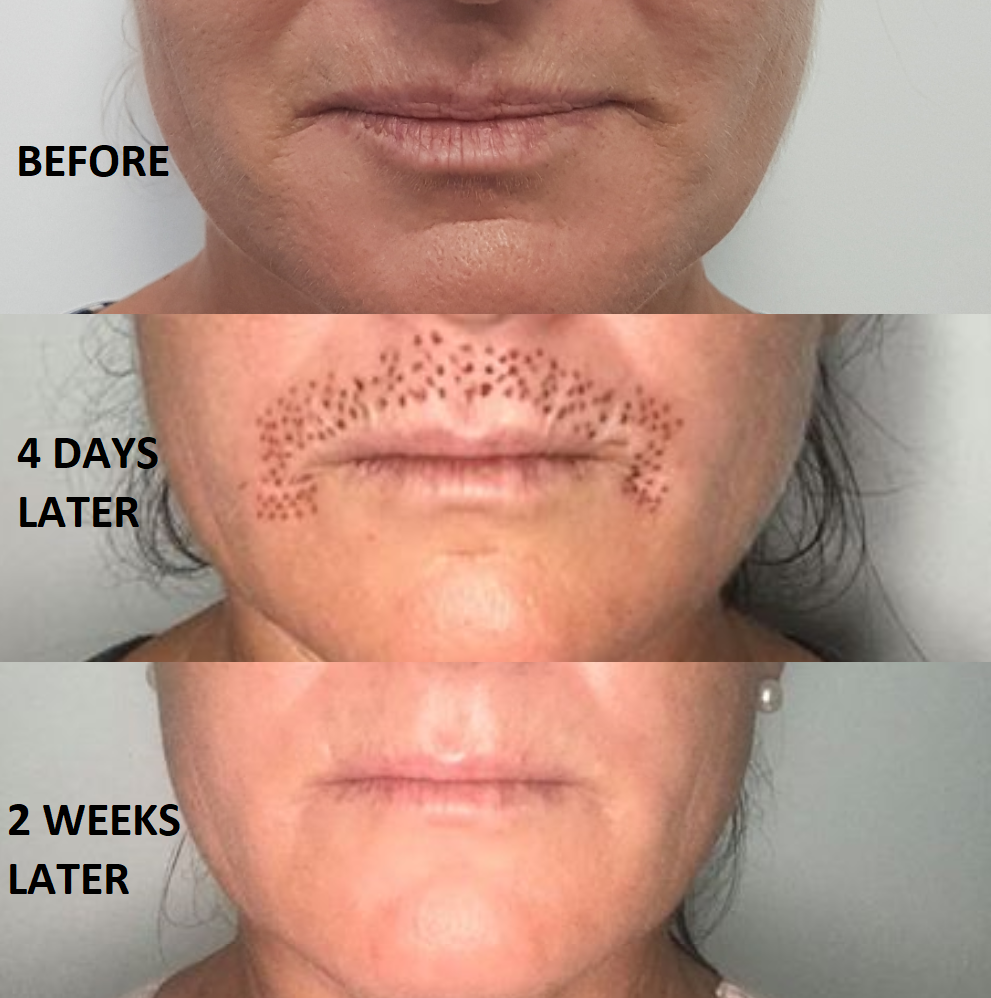 Plasma cosmetic results - incredible top lip improvement after one treatment only!