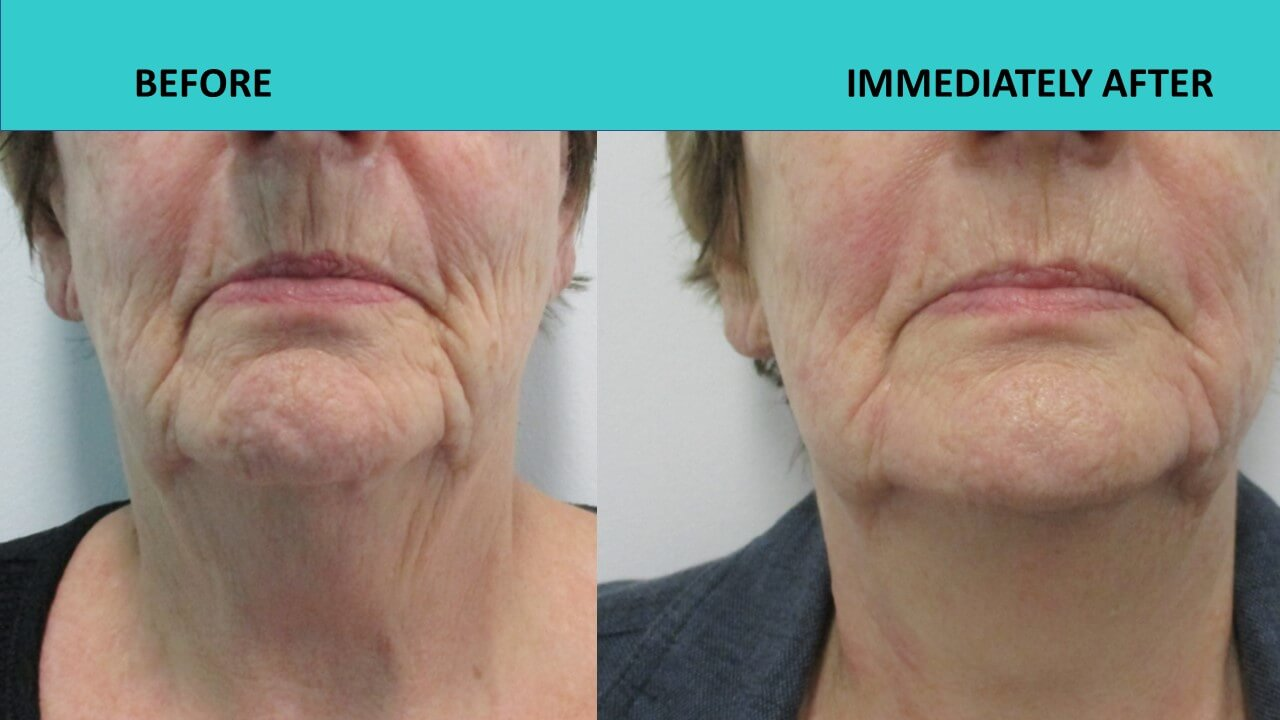 Incredible immediate results after the HIFU face and neck uplift procedure at SABA Medispa.