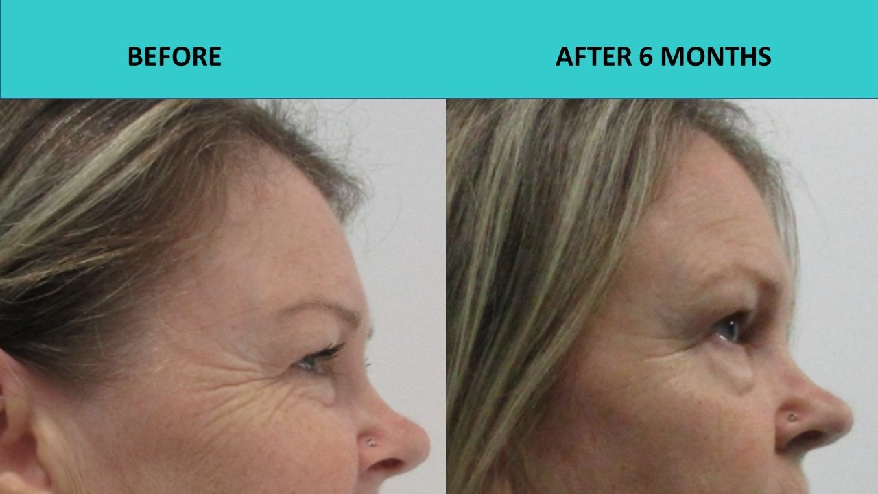 HIFU face and neck lift - we have zoomed in on the crows feet to show the improvements gained 6 months after the procedure.