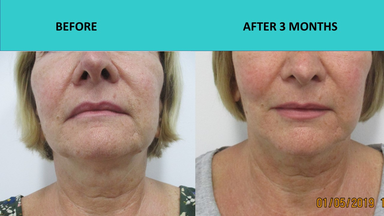 HIFU face and neck lift -  impressive cheek, jaw and skin texture improvements.