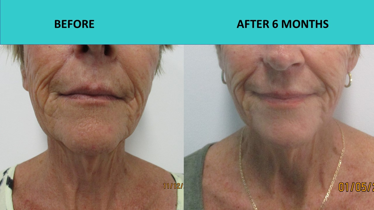 HIFU face and neck lift - significant improvements on her neck, chin and cheeks making her skin look fresher and younger.