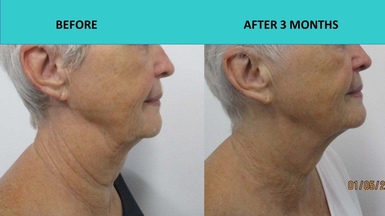 HIFU face and neck lift - impressive HIFU results 3 months after the treatment! Check our her neck and jowls!!!