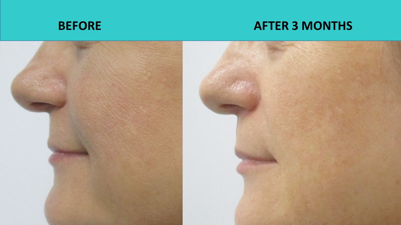 HIFU face and neck lift -  impressive cheek results!!! Skin texture has improved and fine lines have gone away.