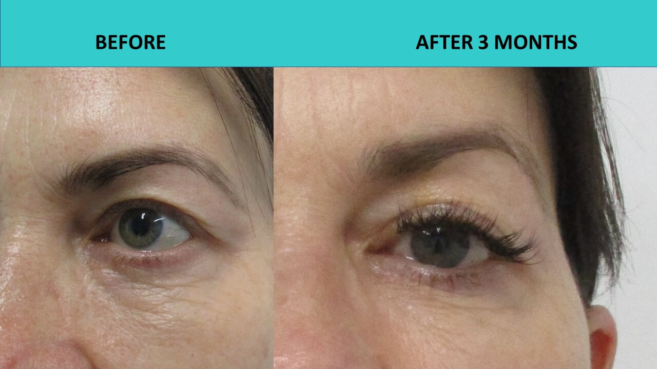 Here are some impressive plasma cosmetic results after one treatment only - upper eye lid lift and lower eye wrinkle removal.