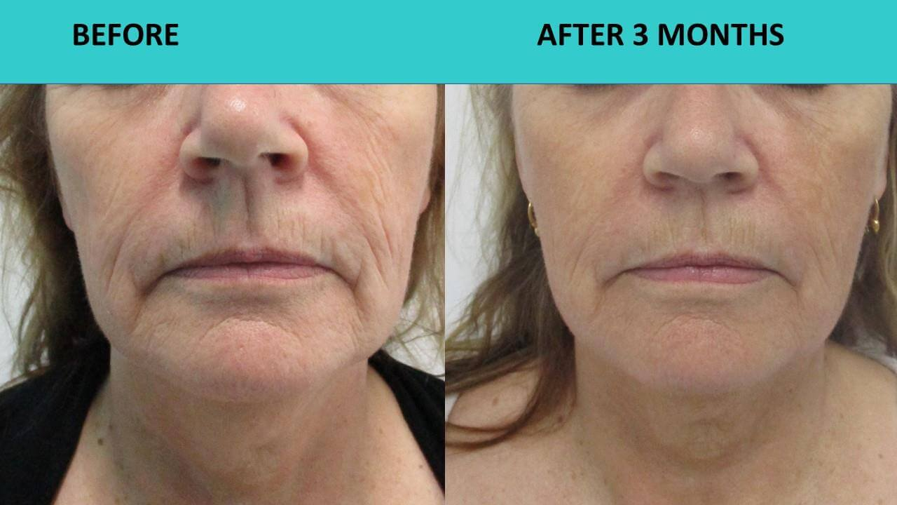 HIFU non surgical face lift at SABA Medispa - great results 3 months after the treatment!