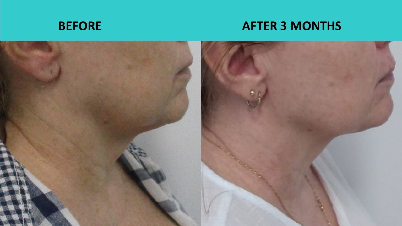 HIFU non surgical face lift at SABA Medispa - impressive jaw line and neck results 3 months after the treatment!