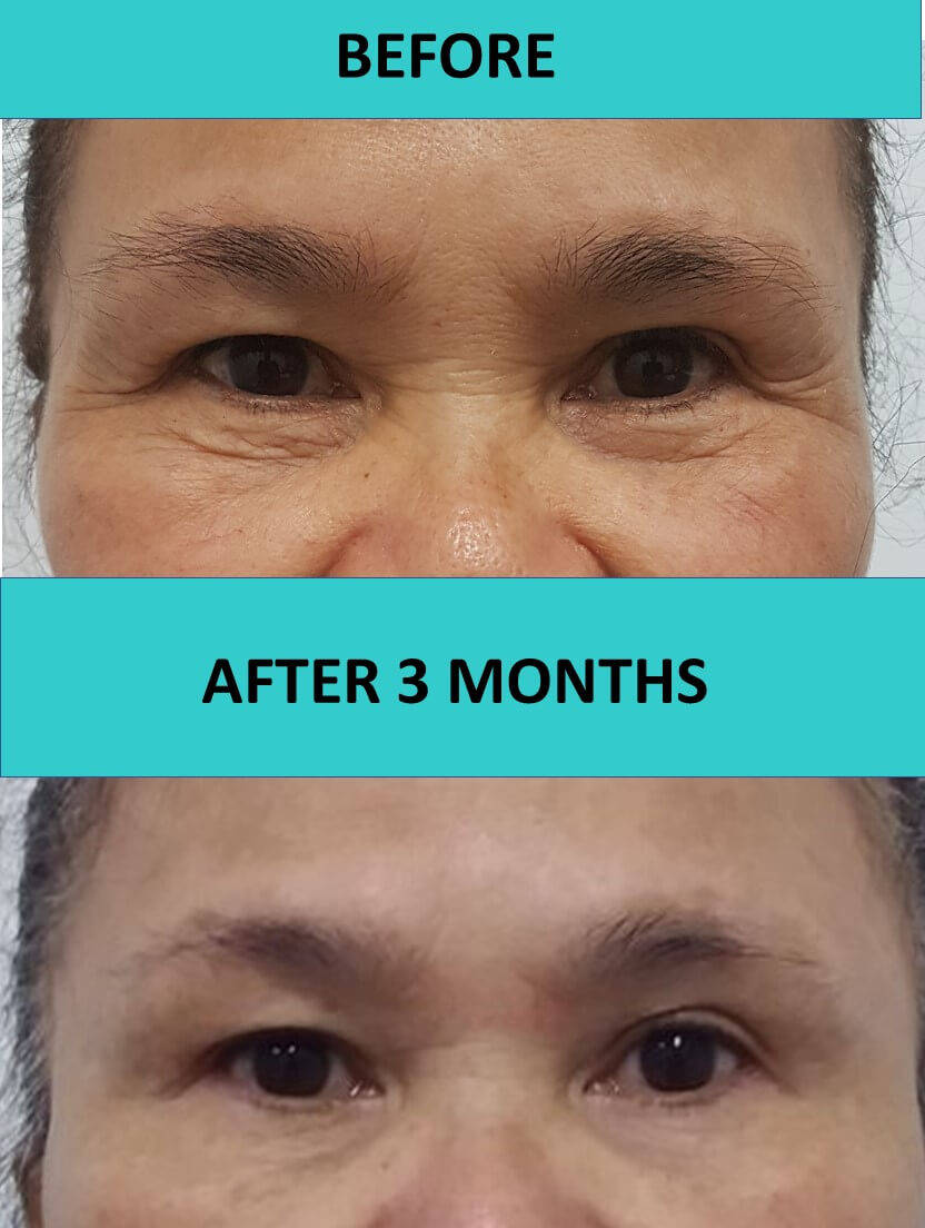 HIFU non surgical face lift delivers significant improvements to wrinkles around this customer