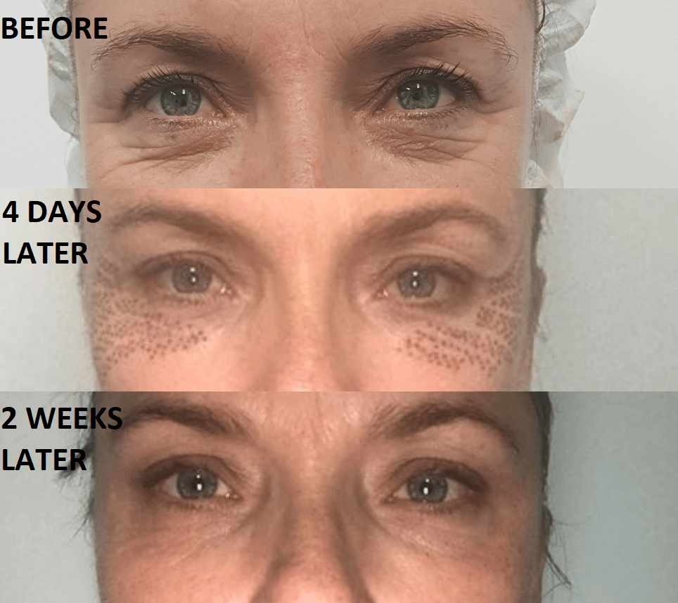 Plasma cosmetic results - incredible under eye wrinkle removal after one treatment only!