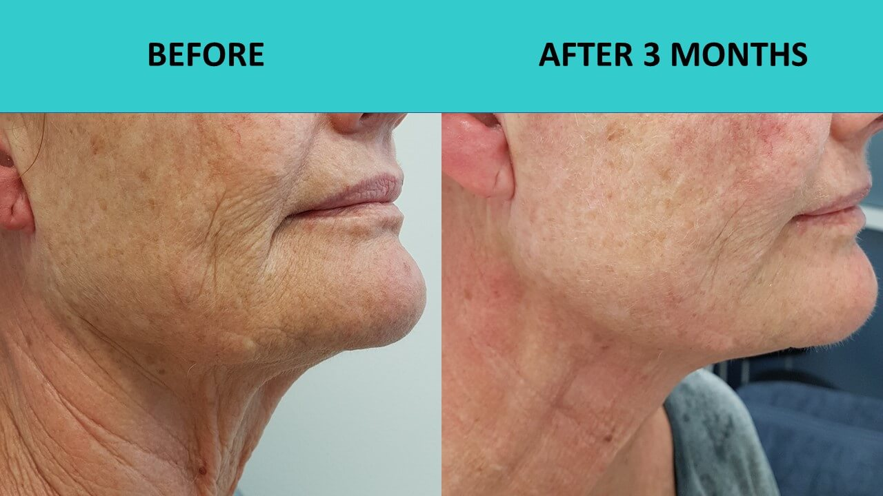 HIFU non surgical face lift at SABA Medispa - impressive results 3 months after the treatment!