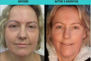 Non Surgical Face Lift Sydney
