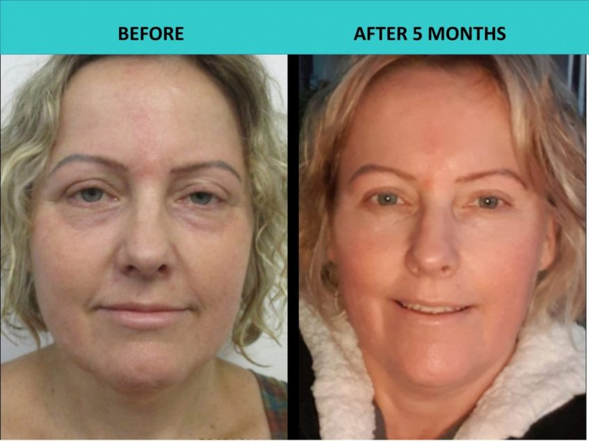 Incredible customer results after 5 months – 4D HIFU Brisbane