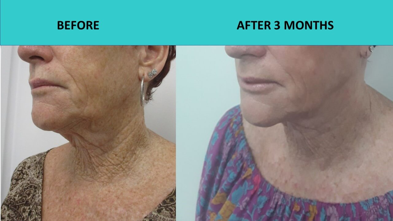 HIFU non surgical face lift at SABA Medispa delivers significant improvements to skin on this customers face and neck 3 months after the treatment!