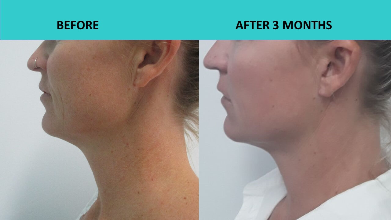 Young women can benefit from the HIFU non surgical face lift treatment. Here we can see significant improvements to her skin 3 months after the treatment!